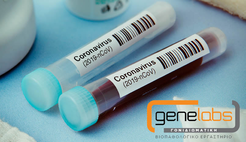 COVID-19 tests – Special offer for GIBA and ELINEPA members from Genelabs